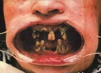 Kissing someone with rotten teeth