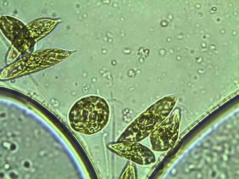 33 best protists euglena images on pinterest. Black Bedroom Furniture Sets. Home Design Ideas