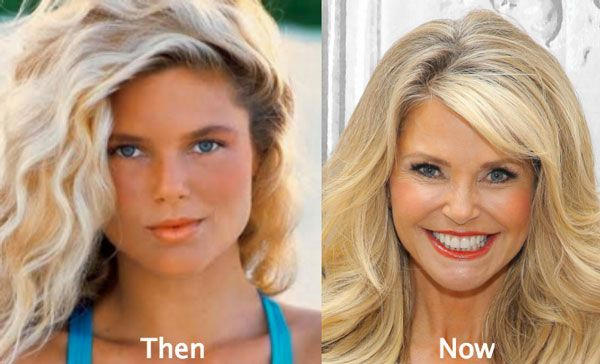 has christie brinkley had plastic surgery