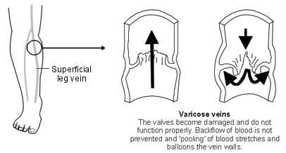 A skin ulcer simply means a loss of a patch of skin. There are many causes for this. In your case, the cause comes from the veins just under the ulcer. Your veins are a little bigger than normal. These are called varicose veins because they look a bit like a wine bottle from ancient Greece (varix).