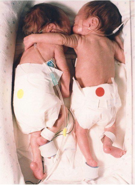 "This picture is from an article called the ""RESCUING HUG""   The article details the first week of life of a set of twins. Apparently each were in their respective incubators and one was not expected to live. A hospital nurse fought against the hospital rules and placed the babies in one incubator. When they were placed together, the healthier of the two, threw an arm over her sister in an endearing embrace. The smaller baby's heart stabilized and temperature rose to normal ♥"