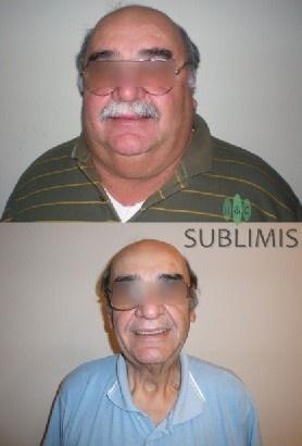 Cirugia Manga Gastrica, foto de antes y despues. Operacion realizada en Cordoba, Argentina por medicos de Sublimis.