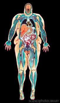 Obese woman, MRI scan