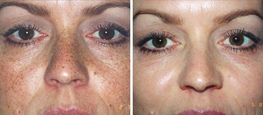 An incredible peel! Selling like crazy in Europe in physician offices already!Order now at im-fabulous.com