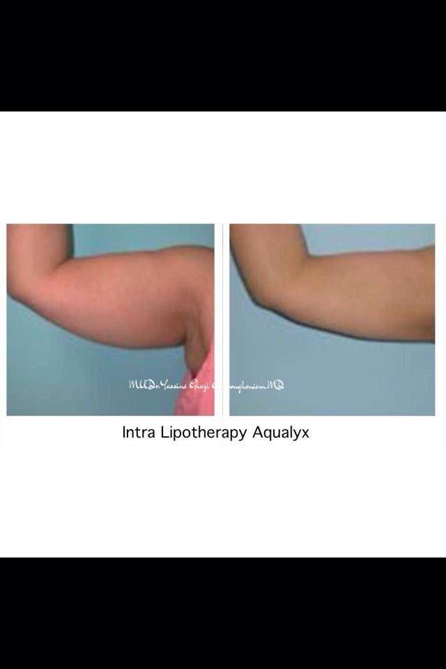 Arm lifting