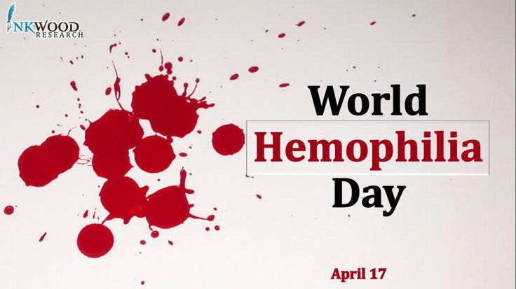 World Hemophilia Day 2017 | Inkwood Research    World Hemophilia Day is an international observance held annually on April 17 by the WFH.Let's all show support to the global bleeding community.  Inkwood research launching new healthcare report on this world hemophilia day https://www.inkwoodresearch.com  #Hemophilia #WorldHemophiliaDay #WorldHemoday #WFH2017 #Clotting #Bleedingdisorder  #Bloodfeed #Bloodflowmeasuringdevice #MarketResearch #Healthcare #Medical #Health