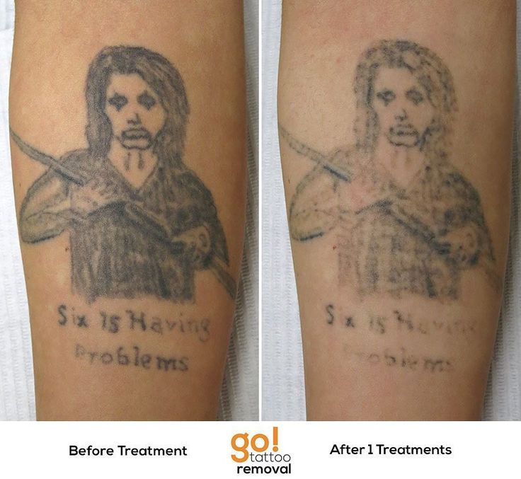 728 best tattoo removal in progress images on pinterest for Best soap to clean tattoo