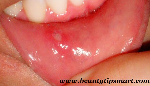 How To Cure Mouth Blisters Fast At Home