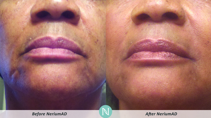 Use a Day Cream to address the signs of aging as well as the causes, inhibit free radical damage, boost the cell renewal process to reveal younger-looking skin, and target the causes of skin-damaging inflammation. #skincare #tips #happyfriday For Info call 254-423-8024 or email nefertitisecret@gmail.com
