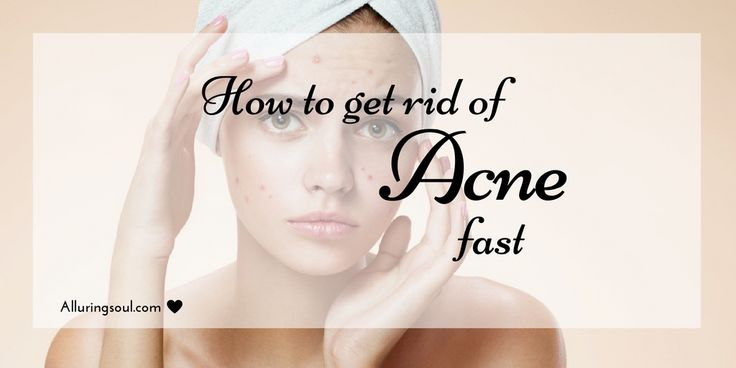 To avoid side effects of OTC medicines,there are powerful home remedies for how to get rid of acne and pimples fast as well as for removing acne black spot.