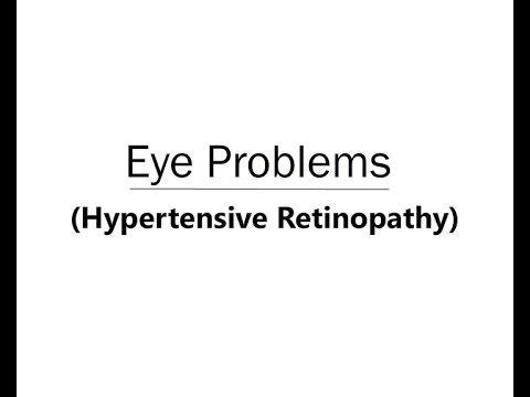 Eye Problems Hypertensive Retinopathy Animation (Telugu Audio)