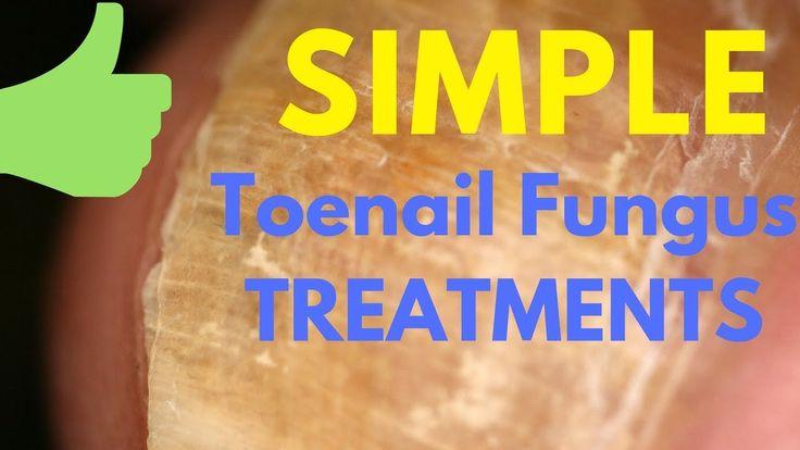 Nail Fungus Treatment - Simple Natural Steps to Treat Toenail Fungus Fro...