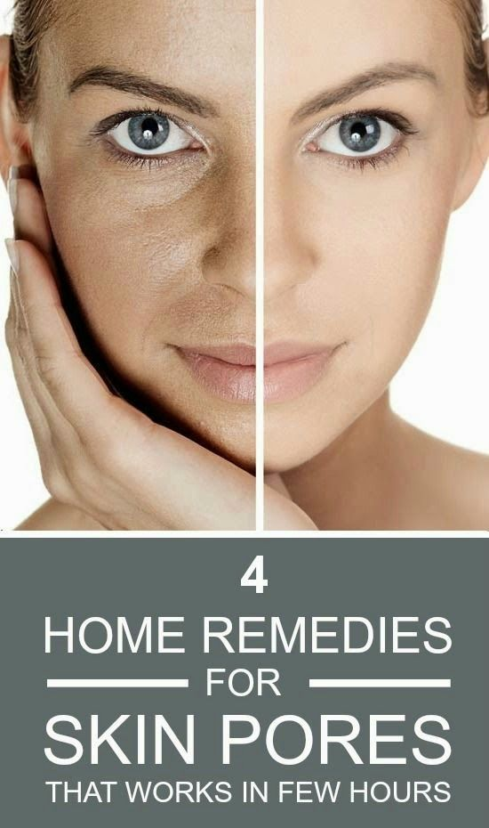 4 Home Remedies For Skin Pores That Works In Few Hours | FormalHealth