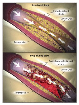 How long does a heart stent last? Do they need to be replaced?