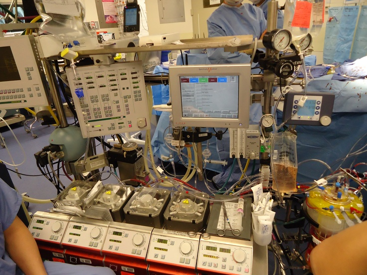 Heart Lung Machine   Cucina Mongero   Pinterest   Lungs ...