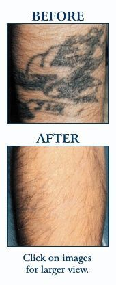 Laser tattoo removal is possible.