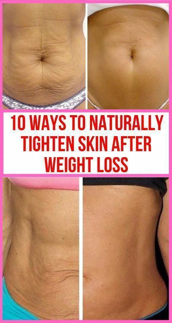 How To Get Rid Of Loose Skin Around Belly