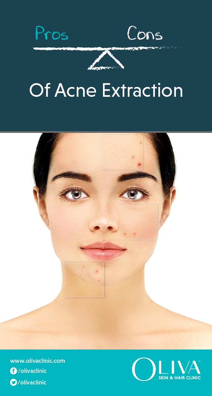 Acne Extraction Is A Procedure Where Pimples And Comedones Blackheads And Whiteheads Are Extracted Using Sterile Tools With The Help Of A Dermatologist Or