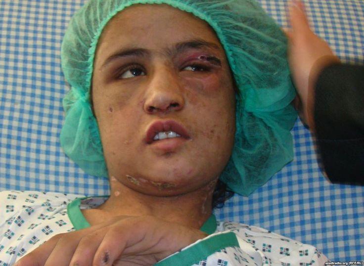 agosto, 2013 | Notizie Migranti - Afghanistan, liberi gli aguzzini della sposa bambina *** Continua, purtroppo, la drammatica vicenda di Sahar Gul, la ragazzina che fu venduta, come sposa, a soli 12 anni. Sahar ha vissuto un inferno nella casa dei suoi parenti acquisiti, che la tenevano segregata in cantina, la picchiavano con tubi di ferro rovente, le infliggevano le più abominevoli torture perché si rifiutava di prostituirsi