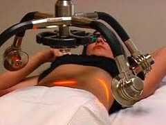 Laser Fat Removal - Facts and Myths Exposed! - http://www.weightlossia.com/laser-fat-removal-facts-and-myths-exposed/