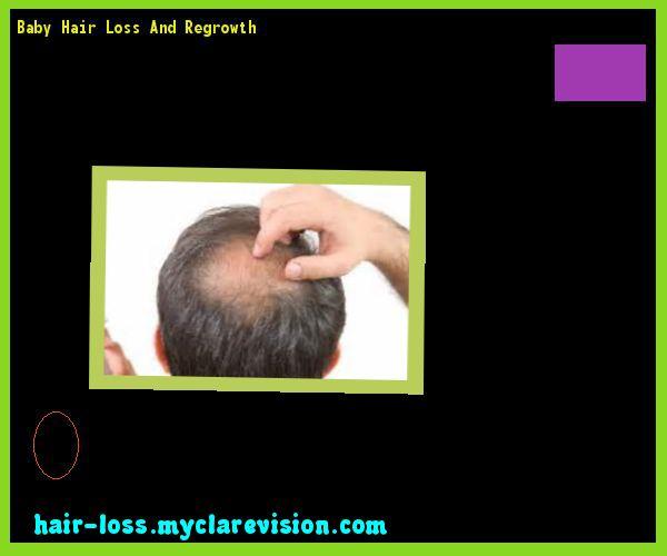 Baby Hair Loss And Regrowth 232702 - Hair Loss Cure!