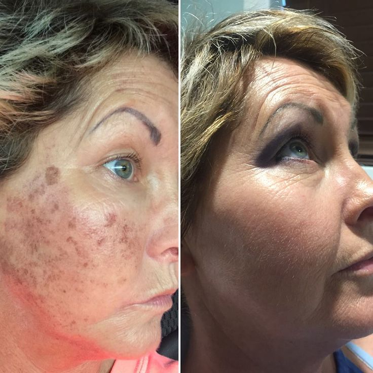Our laser center can undo sun damage - check out the results of this photofacial laser treatment by Lynde! The pictures on the left were taken post-treatment ~4 days and on the right are post-treatment 1 month! #tuscansunspa #tuscansunspaandsalon #tuscanlasercenter #photofacial #bbl #skinrejuvenation #cosmeticlaser #tuscanmedspa