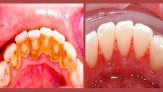 Esta es una forma rápida y súper fácil para eliminar el sarro de los dientes desde la casa sin tener que ir al dentista, este es un ejemplo de una persona que lo hizo. ¡Hazlo esta misma noche, no te lo pierdas!