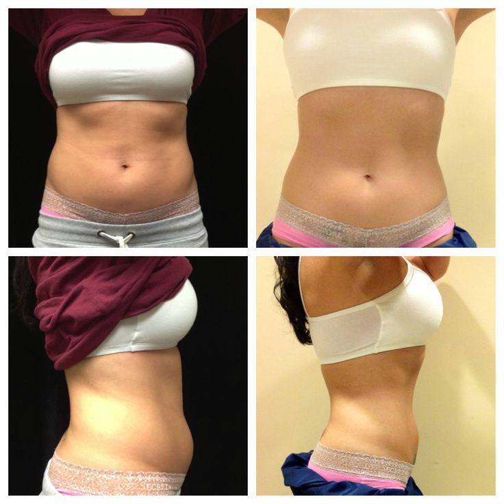 Pictures of Cool Sculpting Before and After Body Sculpting is a great alternative to liposuction or surgery.