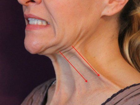 How to Firm your Double Chin and Throat Muscles with Facial Exercises