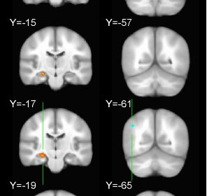 Transcranial Magnetic Stimulation (TMS) successfully improves memory.