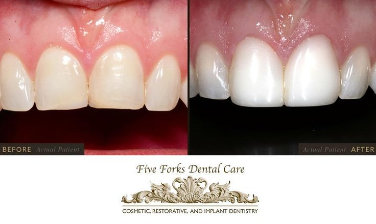 #CosmeticBonding is a quick and affordable cosmetic dentistry treatment that can be use to improve the appearance of discolored teeth. Let us help you achieve the perfect smile with cosmetic bonding treatments! ��#fiveforksdentalcare #cosmeticdentistry #c http://getfreecharcoaltoothpaste.tumblr.com