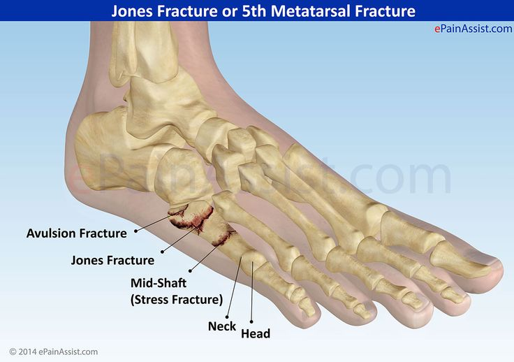 how to tell if a bone is fractured or sprained
