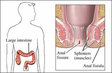 Fistula is a kind of small nodular swelling that arises around the anal region of human body. This swelling gets more pain at its peak stage and sometimes pus or water discharge situation also encounters that gives more pain to patient. The above Ayurveda centre is a right source to avail optimum Ayurvedic treatment for fistula from scratch.