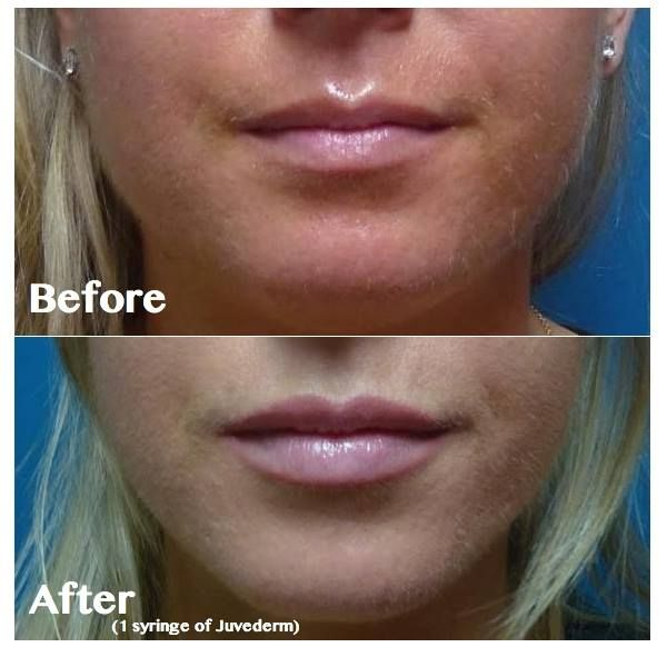 Juvederm Lip Plumping. Juvederm helps rejuvenate and plump lips, so lipgloss or lipstick will look extra fabulous! Check out this before and after photo from our customer! #westpalmbeach #palmbeachgardens #boyntonbeach #florida