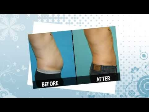 How does Smart Lipo surgery differ from regular liposuction?