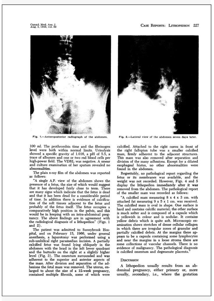 Ectopic X Ray Pregnant Woman