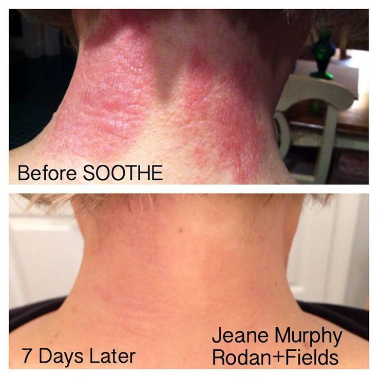 Rodan Fields Before And After On Soothe Get It Here