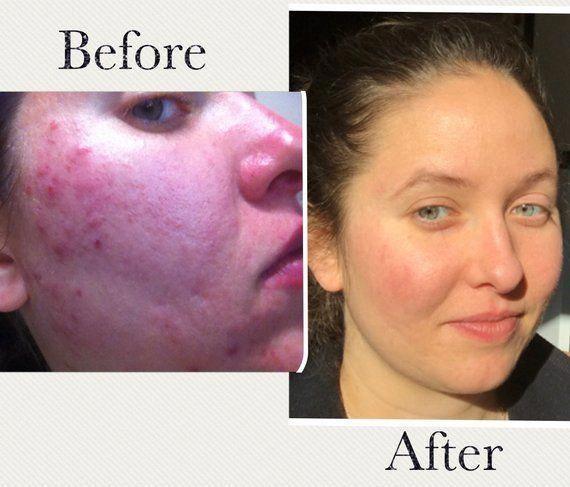 Cystic Acne Skincare Kit Organic Acne Skincare Kit Natural Skin Care Kit Sample Size Grapefruit Brownsp In 2020 Skin Care Kit Organic Acne Products Skin Care Acne