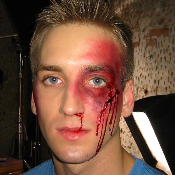 50 Best Images About Bruises Black Eyes Broken Noses