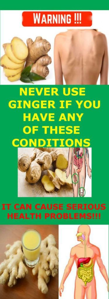 Usage of Ginger Can Cause Serious Health Problems, If You Have any of These Conditions – Medi Idea
