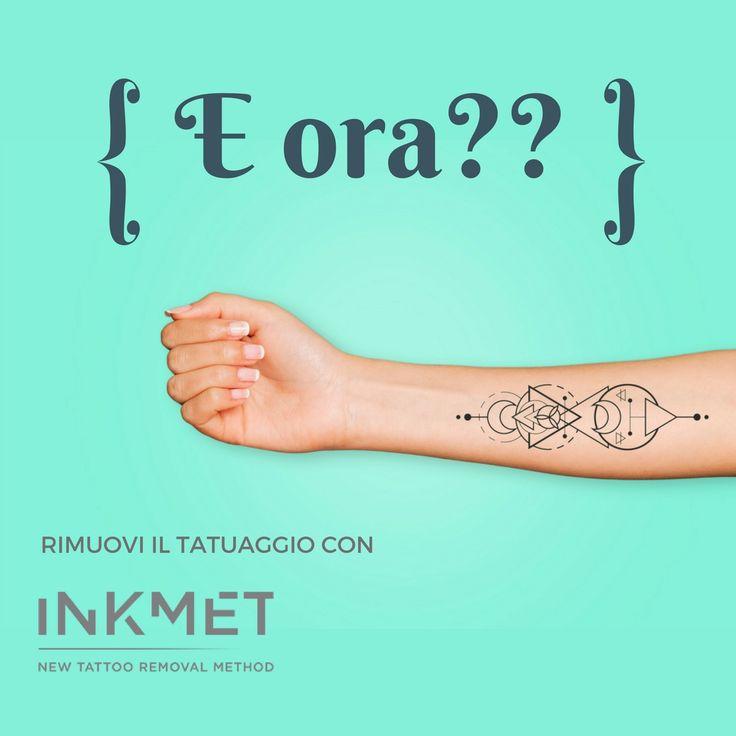 Hai fatto un tatuaggio in vacanza ma non era con l'henné? I #tatuaggi fatti durante i viaggi con gli amici sono diventati i nuovi souvenir, un ricordo indelebile dell'avventura condivisa. Ma siete sicuri che una volta tornati a casa il tatuaggio vi piaccia davvero?  Oggi c'è una soluzione, oggi c'è #INKMET! New Tattoo Removal Method → http://inkmet.com/rimozione-tatuaggio-inkmet  #removal #tattooremoval #rimozionetattoo #rimozionetatuaggi #tattoo #ink #inked #removalmethod