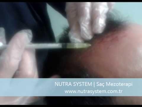 NUTRA SYSTEM   Saç Mezoterapi Uygulaması