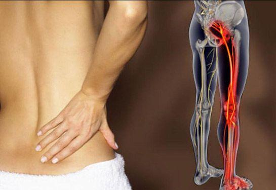 Come eseguire lo stretching del muscolo Piriforme per sbarazzarti di sciatica e dolore all'Anca. VIDEO http://salutecobio.com/stretching-muscolo-piriforme-sciatica