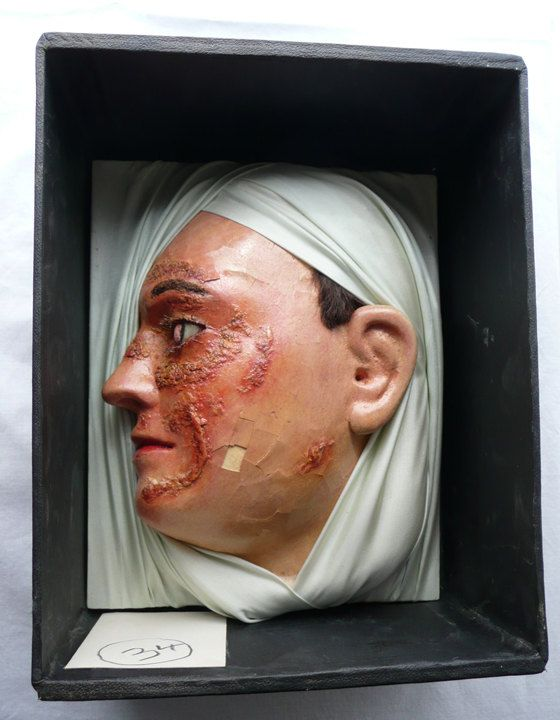 Antique Medical Disease Face From Display - Amazing Medical Curiosity Oddity - 2 on Etsy, Sold