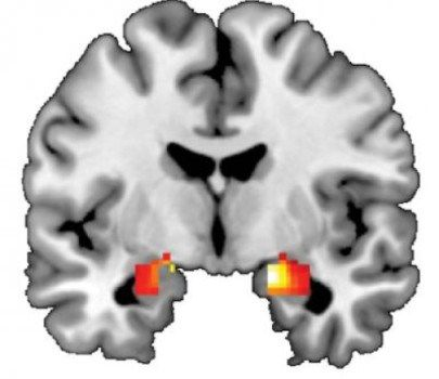 Researchers find multiple new predictors of stress-related illnesses.