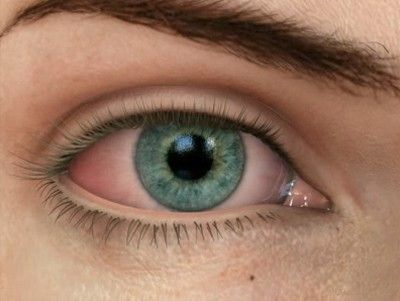 Essential Oils for Dry Itchy Eyes