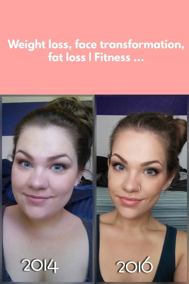 Face Weight Loss Before And After : weight, before, after, Weight, Before, After