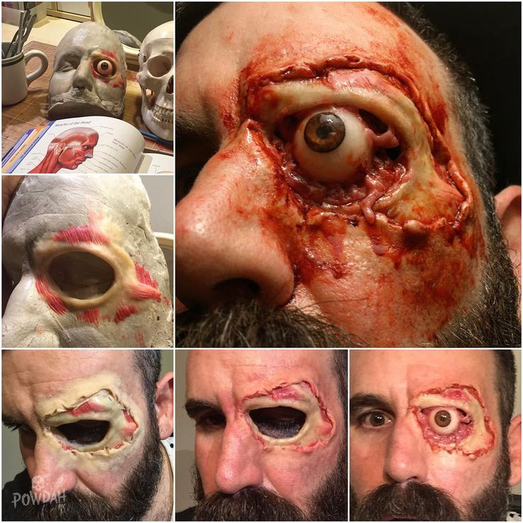 Creating the exposed eye socket. The skull and muscle are beeswax sculpted directly on to an ultracal cast of my face. I covered the cast generously with petroleum jelly. The fleshy eye socket is silicone coloured with flocking. The buildup around the eye is scar wax and skin illustrator with blood to finish.