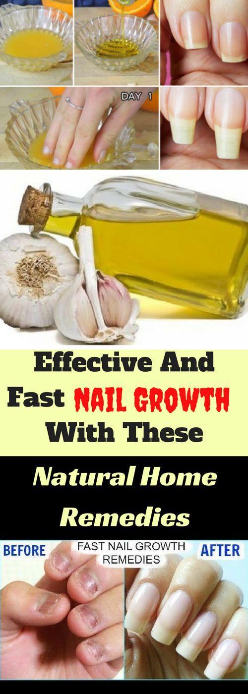 Viele Faktoren tragen zum Wachstum der Nägel bei, Gesundheitsprobleme, einige Medikamente … – ~Nails~