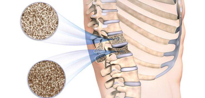 Přebytek železa a osteoporóza v menopauze. Opět jsme tu s velmi běžným a vážným tématem -  přetížení železem a dnes k tomu přibývá vliv na osteoporózu a jako bonus náznak různých souvislostí.